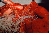 Adult heartworms in pulmnary artery of a dog online vet