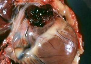 haemangiosarcoma german shepherd dog heart