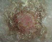 Moist eczema from allergies online consult question and answer