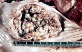 Sarcoma esophagus