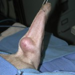 Operating to remove a mast cell tumor