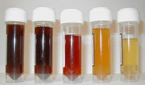 red or rust coloured urine