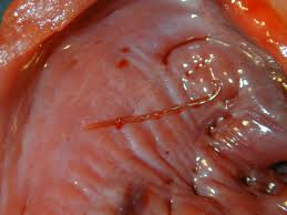 angiostrongylus vasorum in the heart