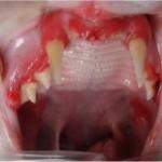 severe gingivitis
